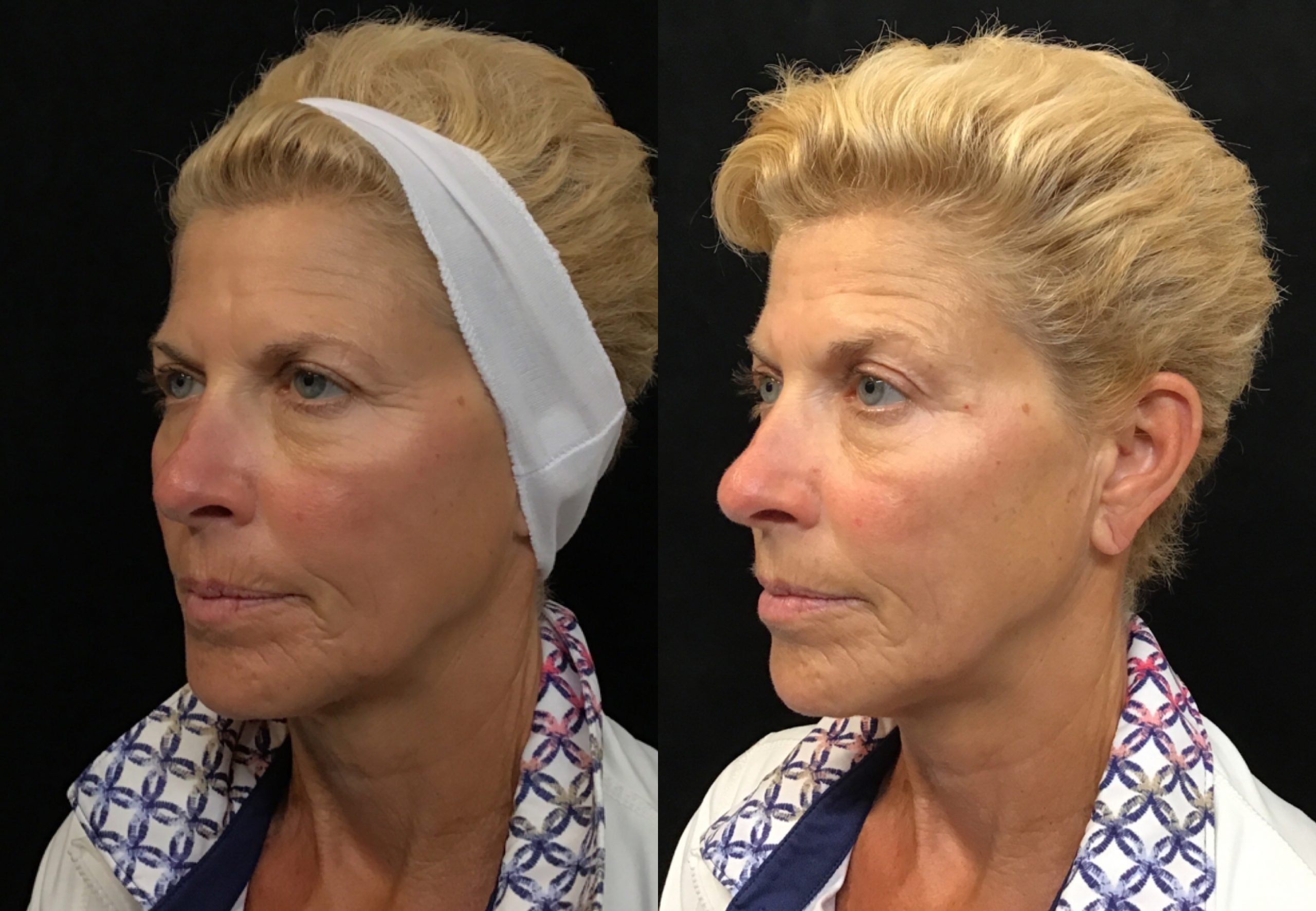 botox_prevent_wrinkles_young_women
