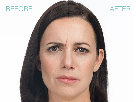 before after photo of botox xeomin and dysport